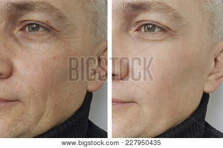 Face Man Wrinkles Before And After Cosmetic Procedures