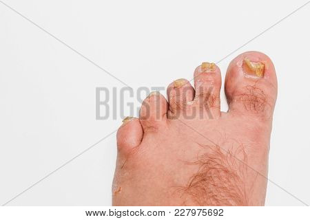 A toenail fungus at the peak of the infection. poster