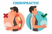 Chiropractic conceptual vector illustration with back bone curvature. Healthy and deformed. poster