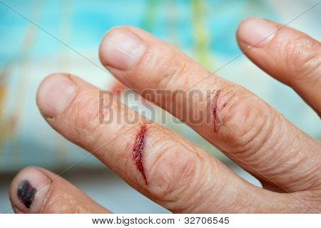 Traumatized By The Fingers Of The Hand