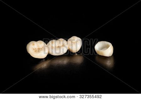Ceramic Crowns Of Human Teeth Closeup Macro Isolate On Black Background. The Concept Aesthetic Denti