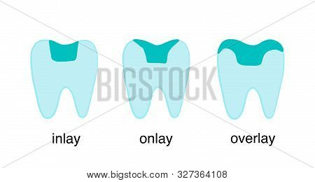 Inlay Onlay Overlay Tooth Crown Restoration Porcelain Hand Drawn Vector Illustration Type Classifica
