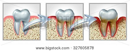 Tooth And Gums Disease Medical Dental Chart Concept With Healthy Teeth Getting Gingivitis And Period