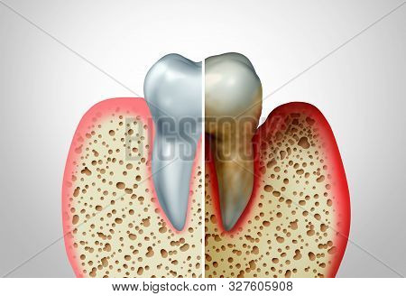 Gum Disease Comparison With A Healthy Tooth And An Unhealthy One With Periodontitis And Poor Oral Hy