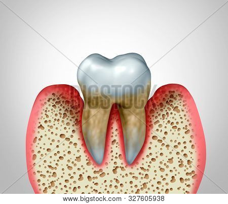 Periodontitis Gum Disease And Poor Oral Tooth Hygiene Health Problem As A Bacteria Infection Diagram