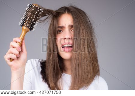 Closeup Hair Loss, Hair Fall In Hairbrush, Stress Problem Of Woman With A Comb.