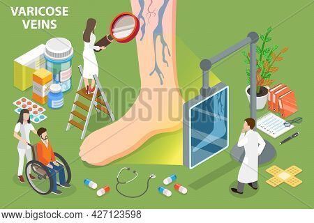 3d Isometric Flat Vector Conceptual Illustration Of Varicose Veins, Enlarged And Twisted Vein Treatm