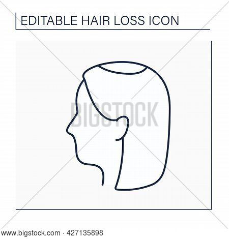 Hair Loss Line Icon. Woman Loses Hair.early Hair Thinning In Vertex. Alopecia Concept. Isolated Vect