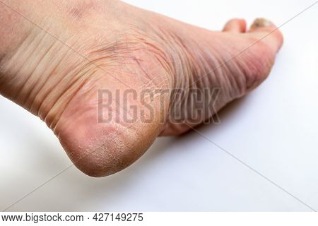 Cracked Heel. Close Up Of A Person With Dry Skin On Heel. The Heel Of The Foot With Bad Skin Is Cove