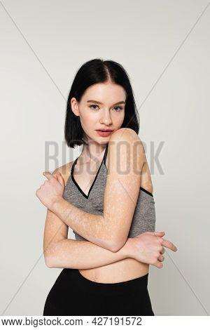 Young Sportswoman With Vitiligo Posing Isolated On Grey