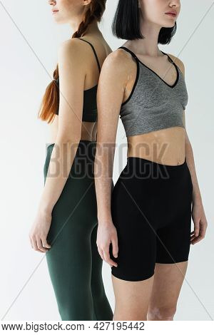 Cropped View Of Sportswomen With Vitiligo And Freckles Standing Back To Back Isolated On Grey