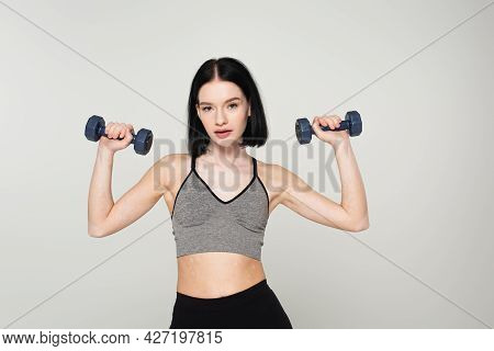 Sportswoman With Vitiligo Training With Dumbbells Isolated On Grey