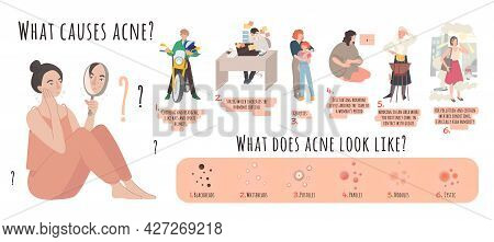 What Causes Acne. Landscape Poster With Useful Information