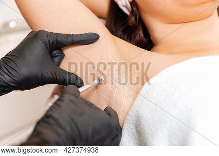 Cosmetologist In Black Latex Gloves Makes Injection Of Botulinum Toxin On The Woman's Axillary Hollo