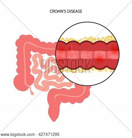 Crohns Disease Concept. Inflammatory Bowel Disease. Inflammation Of The Digestive Tract, Abdominal P