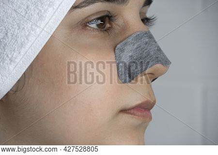 A Woman Sticks A Cleansing Strip On Her Nose. Black Dots On The Nose. Girl Without Makeup In The Bat