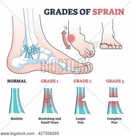 Grades Of Sprain As Ankle Or Foot Medical Injury Levels Outline Diagram. Anatomical Leg Problem Sign