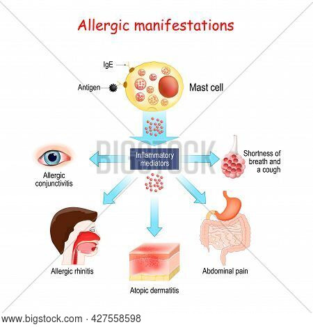 Food Allergy And Allergic Manifestations. Mast Cell And Inflammatory Mediators. Allergic Conjunctivi
