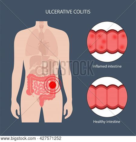 Ulcerative Colitis Concept. Ulcer Inflammation And Healthy Intestine. Inflammatory Bowel Disease. Pr