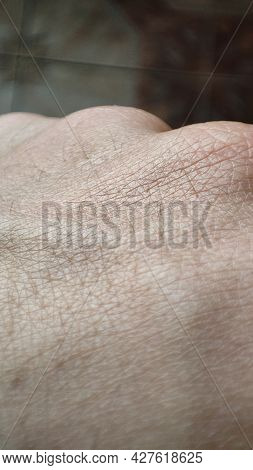 Macro Skin Of Human Hand. Medicine And Dermatology Concept. Healthy Brown Caucasian Skin. Close Up D