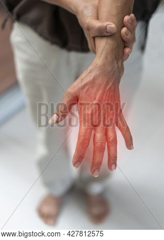 Peripheral Neuropathy Pain, Guillain-barre Syndrome Gbs In Elderly Patient On Hand, Finger And Senso