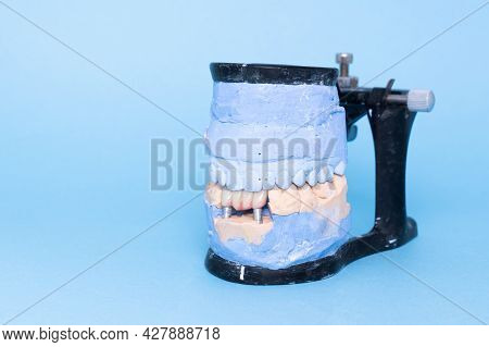 Veneers And Crowns On Gypsum Dental Artificial Jaw On Blue Background. Upper And Lower Jaws Plaster