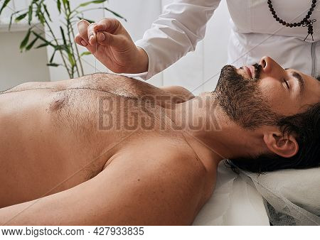 Acupuncturist Inserts Acupuncture Needles At Special Points On Mans Body Meridians. Acupuncture Need