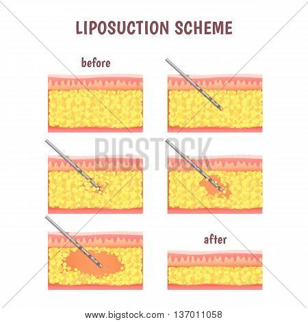liposuction illustration stages via cannula, leather sectional and fat removal