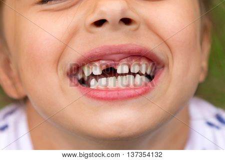 Little girl fell a baby tooth. Child's mouth with hole between the teeth. Shallow dept of field