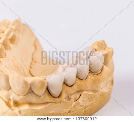 Dental prosthesis on the chalk model, studio shot