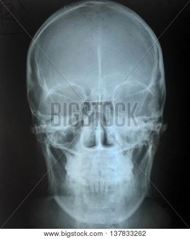 The skull AP view x-ray in mild head injury case