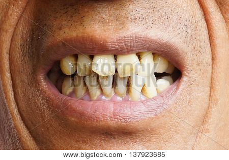 Man with yellow teeth due to heavy smoking cigarette