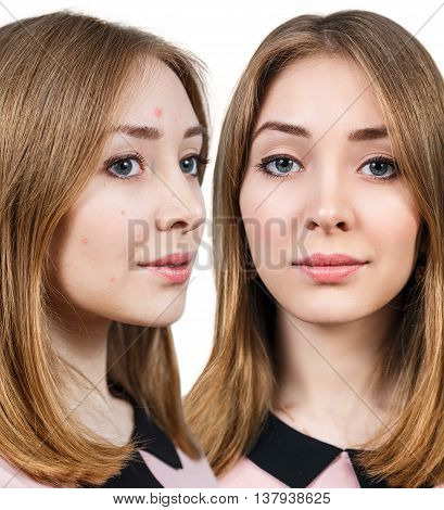 Woman with problem skin on her face before and after treatment isolated on white