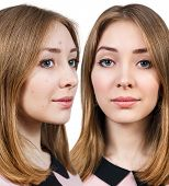 Woman with problem skin on her face before and after treatment isolated on white poster