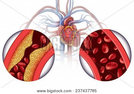 Chelation Therapy And Heart Disease Treatment Concept As An Alternative Medicine For Human Blood Cir