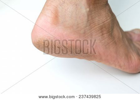 Cracked Heel Dry Foot On Isoleted Background.