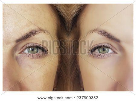 Face Woman Wrinkles       Results Elderly Elderly Surgery