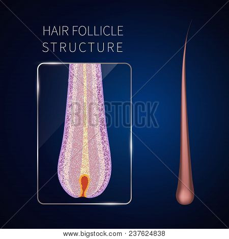 Hair Bulb Under The Microscope. Follicle Structure Closeup. Removal, Treatment And Transplantation C