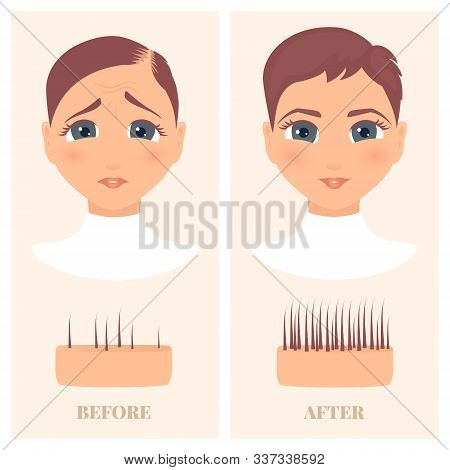 Woman Before And After Hair Loss Treatment In Front View