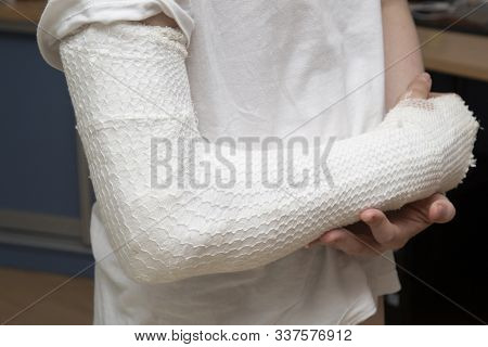A Broken Arm. Fracture Of The Forearm At The Teenager. Arm In Plaster.