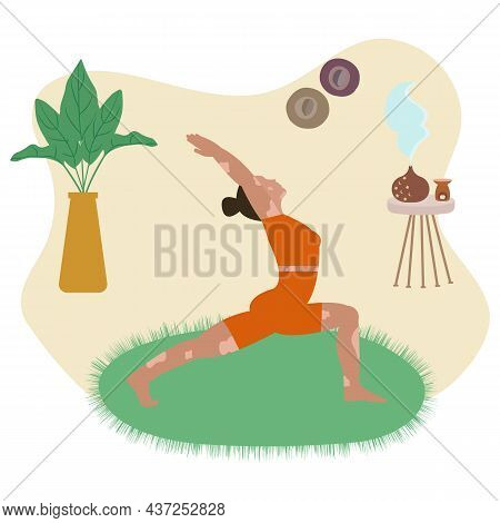 A Young Woman With Vitiligo Doing Yoga, Practicing Meditation And Stretching On The Mat. Internation