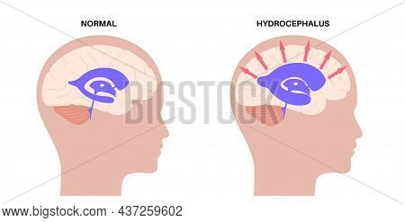 Hydrocephalus Shunt In The Child Head Poster. Pressure On The Brain. Ventricular System Anatomy. Cer