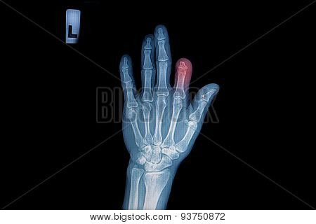 X-ray Of Trauma Hand And Finger