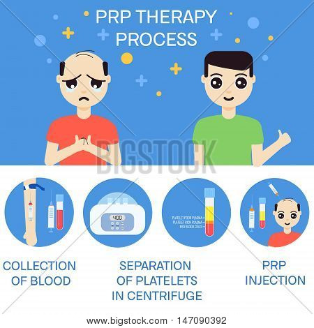 Platelet rich plasma injection procedure. PRP therapy process for men. Male hair loss treatment infographics. Meso therapy. Hair regrowth stimulation. Vector illustration.