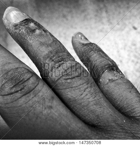 The Infectious wound on finger of right hand