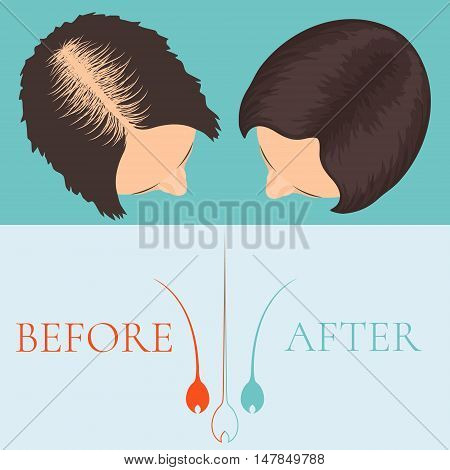 Top view of a woman before and after hair treatment and hair transplantation. Female alopecia. Hair care concept. Hair bulb logo. Hair loss clinic concept design. Vector illustration. poster