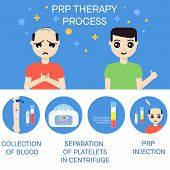 Platelet rich plasma injection procedure. PRP therapy process for men. Male hair loss treatment infographics. Meso therapy. Hair regrowth stimulation. Vector illustration. poster