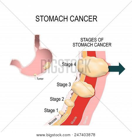 The Clinical Stages Of Stomach Cancer. Classification Of Malignant Tumours. Vector Illustration For