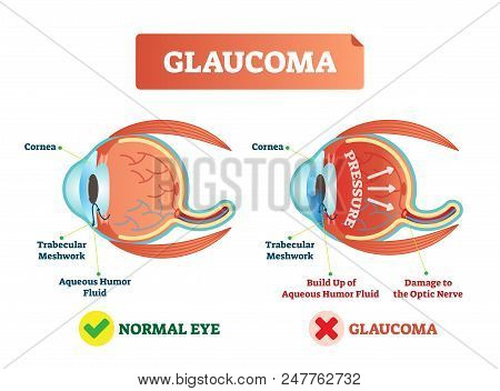 Glaucoma Illness Vector Illustration. Cross Section Close-up Comparement With Normal And Damaged Eye