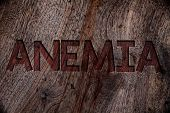 Writing note showing  Anemia. Business photo showcasing Bloodlessness Disease Severe Blood Loss Illness Sick Iron Deficiency Wooden background vintage wood board wild rough old antique messages poster